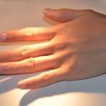 産後に指がカクカクするばね指いつまで続く?授乳中の治療は?