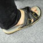 足裏の皮膚が固い痛い!皮かむける冬の原因と対策