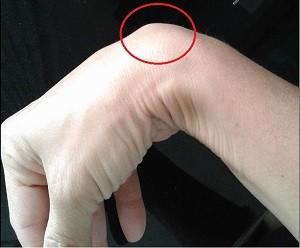 手首の甲のガングリオン