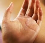 ガングリオンの原因と予防対策。再発の頻度は?自然に消える?